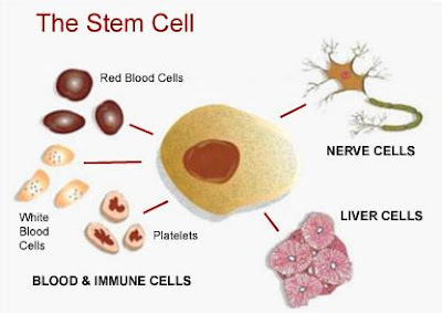 the possibility of treating all diseases through stem cells A bone marrow transplant involves taking cells that are normally found in the bone marrow (stem cells treat diseases such as leukemias through the catheter.