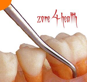 Beware of impact of cavities