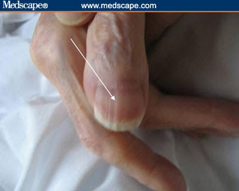 M.RISHAN SHAREEF COLLECTION OF ARTICLES.: Finger nails to ... B12 Deficiency Nails