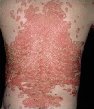 psoriasis zinc