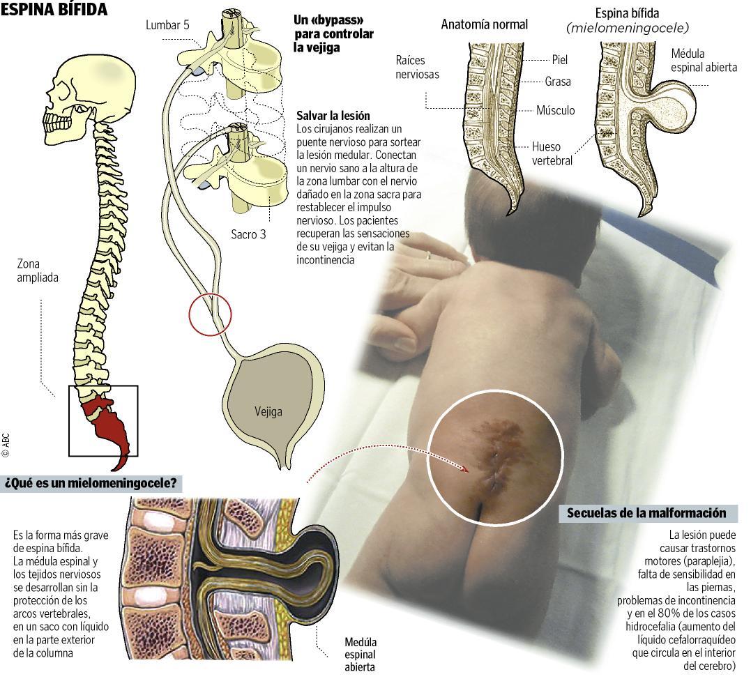 PUBLICAR LO QUE ESCRIBIMOS en fortalecimiento: Espina Bifida