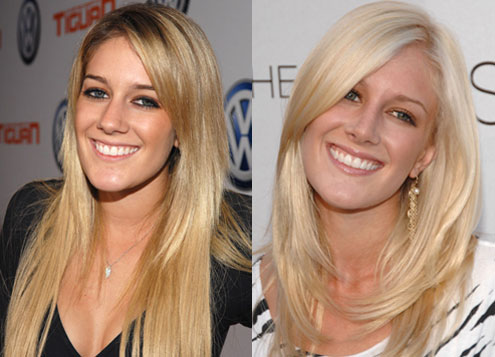 heidi montag wedding dress. heidi montag before and after