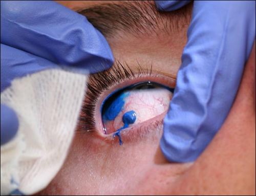 opinion sobre tatuaje. moda de tatuajes. Tips de belleza: La moda de los tatuajes en el ojo