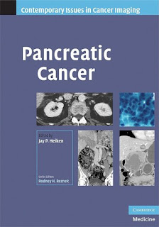 Pancreatic cancer pdf download free