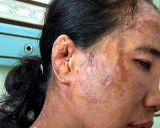 foto penganiayaan&penyiksaan SITI HAJAR