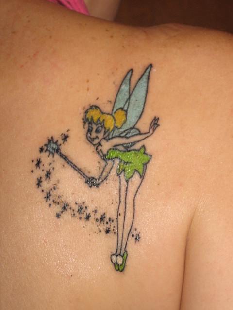La eliminación de tatuajes se