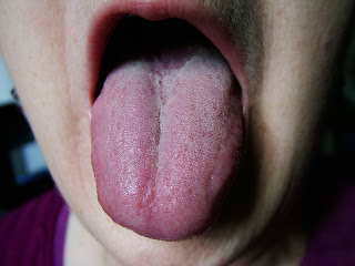 Fissured Tongue: Causes and Treatments Med