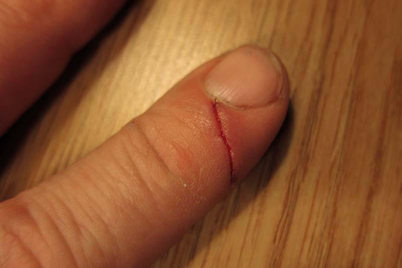 i cut my finger how to stop bleeding
