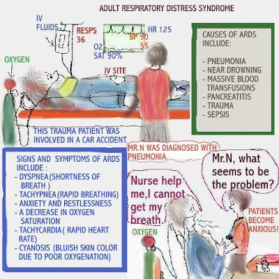 distress respiratory syndrome pathophysiology Adult