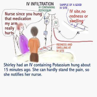 Dear Nurses: INTRAVENOUS INFILTRATION