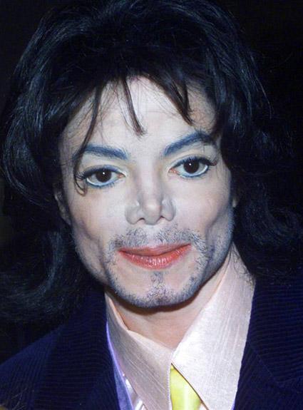 Siccome è possibile togliere letà pigmentary i posti da una faccia