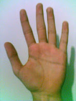 Simian line: hand with a single transverse crease.