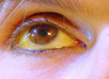 Fotografia thrombophlebitis su mani