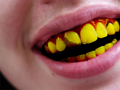 ugly yellow teeth