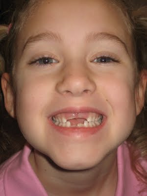 missing front teeth images