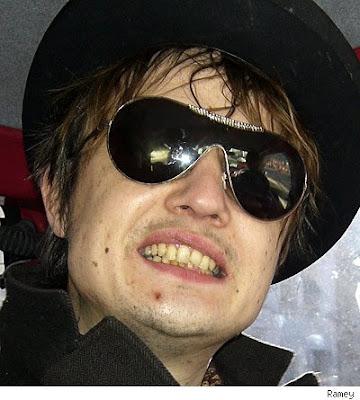 http://4.bp.blogspot.com/_B1LlYh6iKqs/SrwhG2fWkVI/AAAAAAAAAzA/K5HLzftayvk/s400/pete-doherty-british-teeth.jpg