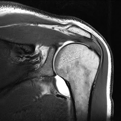 Radiology Cases: Lateral Downsloping of Acromion