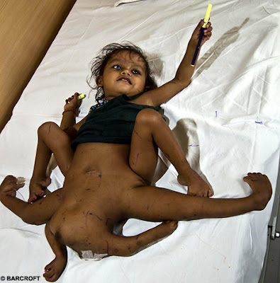 8 Incredible Mutant Babies Pictures Seen on www.VyperLook.com