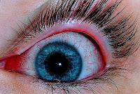 My Kids Got Sore Eyes