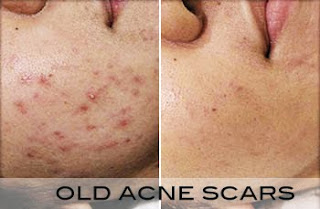what over the counter acne medicine works the best