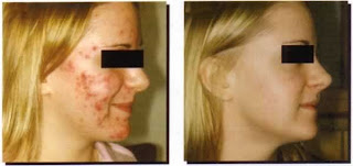 acne scars before and after scar solution,acne scars