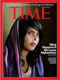 Aisha jovem de 18 anos que foi  sentenciada pelos Talibã a ter nariz e orelhas cortados