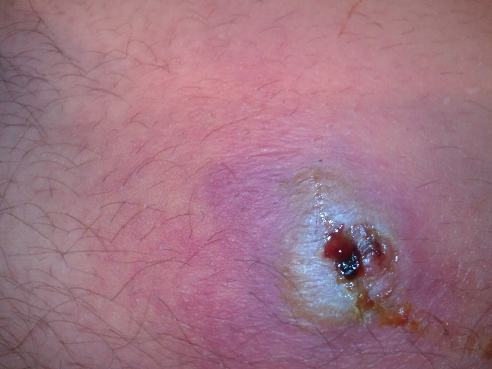 brown recluse bite images day 1