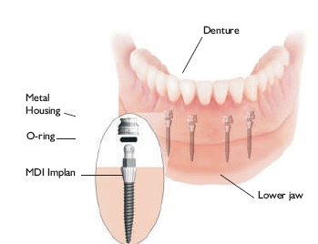Your implant questions answered. How much do dental implants cost? Am I a   candidate? Is tooth implantation worth it? What are my mini implant alternatives?