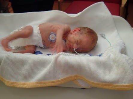 Medical PPT: Collection of Neonatal Diseases