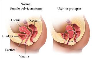 prolapsed uterus: Peranakan Turun apa Penyebabnya?