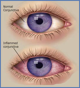 Diseases of Conjunctiva
