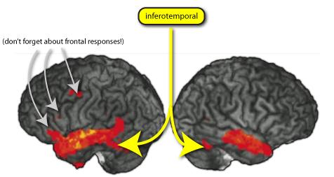 Minus Et Cortex. inferotemporal cortex,