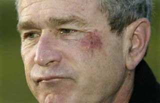 "Bush after ""choking on a pretzel"""