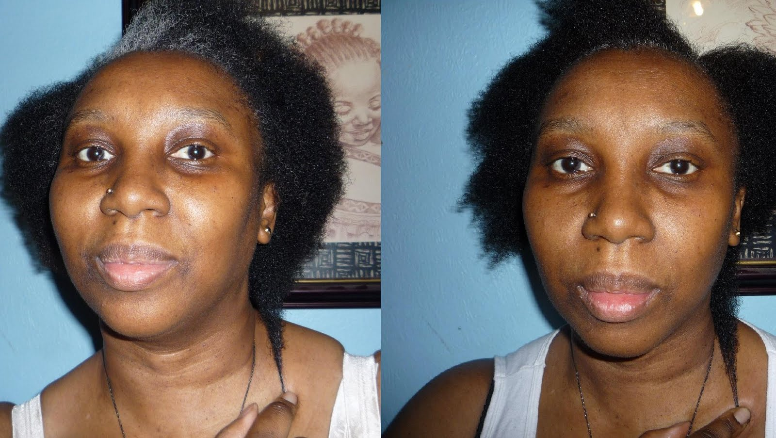 Ovation+Cell+Therapy+Before+And+After Ovation Hair Therapy Before and