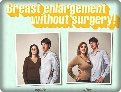 breast augmentation uk