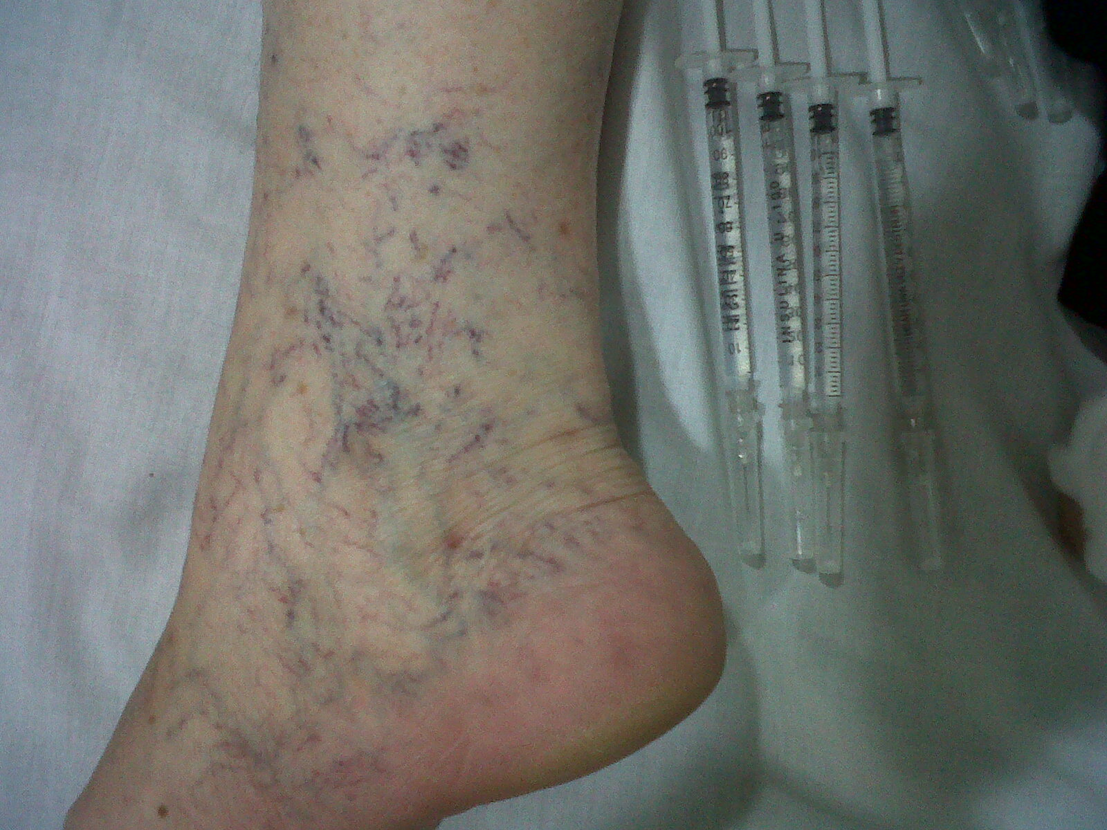 Los tipos de las enfermedades de las venas en los pies