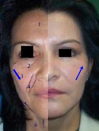 El antes y despues de las cirugias plasticas