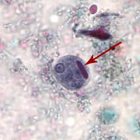 Como se llama la análisis de sangre a los parásitos en el hígado