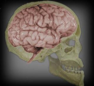 Imágenes cerebrales para permitir el diagnóstico diferencial de las demencias. Europa Press