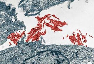 Identifican los genes responsables de los ingresos en UCI por gripe A