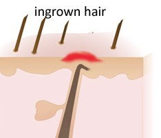 ingrown
