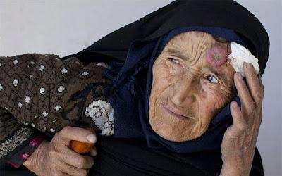 阿富汗 毀容病 - Leishmaniasis 侵襲阿富汗的毀容病