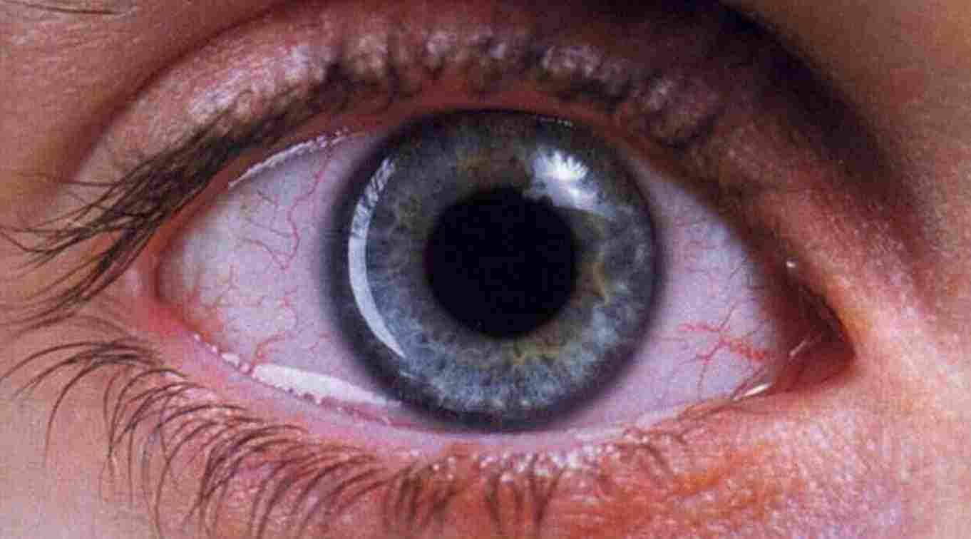 en ver y, además entrenado, suele ver más que el común de los ojos
