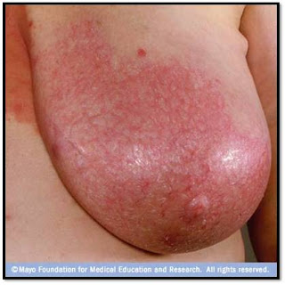 breast injury infection