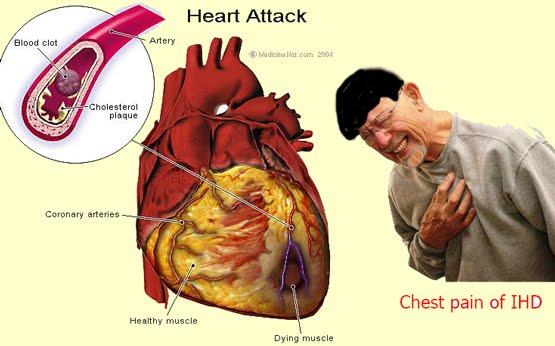 http://4.bp.blogspot.com/_DP4mgmsZ7NQ/TGPoUle4idI/AAAAAAAAA6M/uBTvhboLS-A/s1600/Heart+attack.jpg