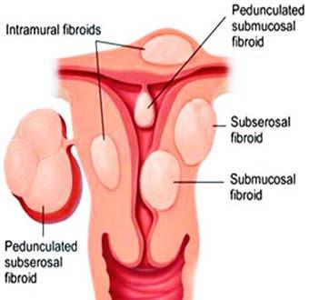 Uterine Artery Embolization for Fibroids
