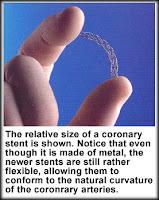 angioplasty; stent