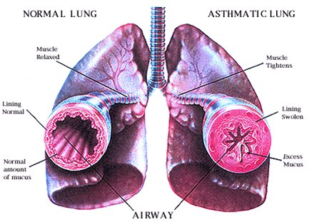 It s just asthma