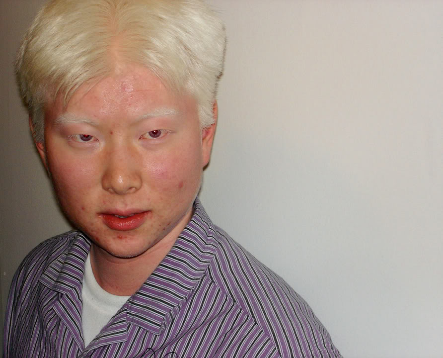 Albino People