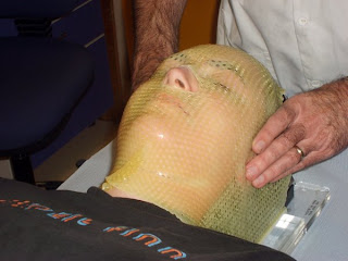 mesh mask for radio therapy to the head